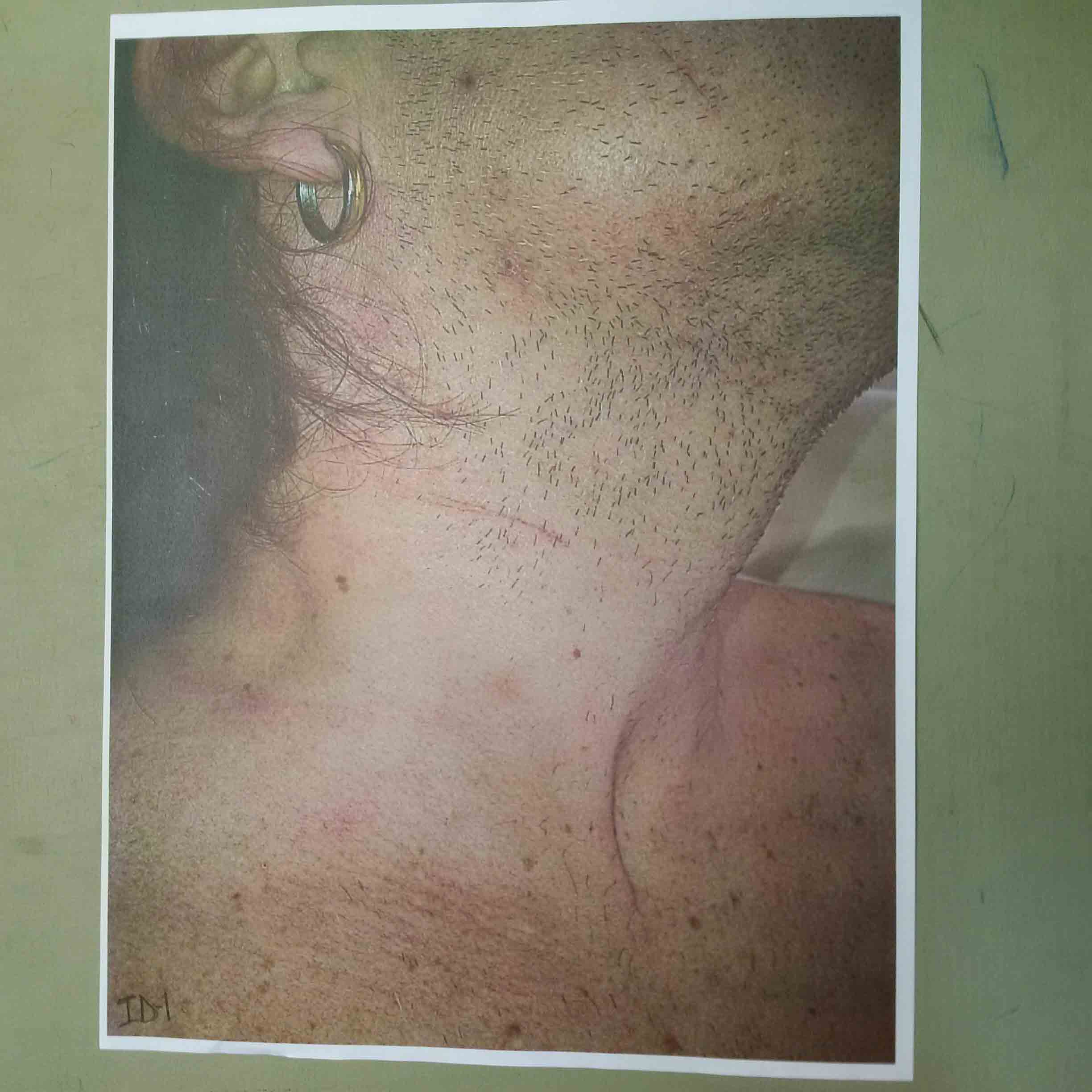 An exhibit of a photo of Patrick Brazeau's next and lower cheek submitted by the defence Thursday.