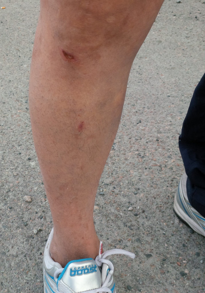 The leg of 'Sophie' in Yellowknife, after she sat on her glasses.